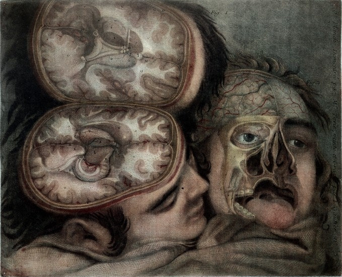 Wellcome Library, London. Two dissected heads, on sacking. After dissections by P.Tarin. Coloured Mezzotint 1748 By Gautier Dagoty. From- Anatomie de la tete. By- Jacques Fabien Gautier d'Agoty