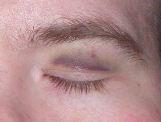 Eye'm Hurting