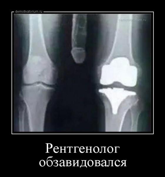 rentgenolog_obzavidovalsja_167978.jpg