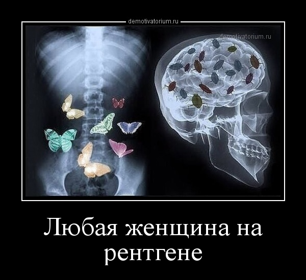 lubaja_jenshina_na_rentgene_170945.jpg