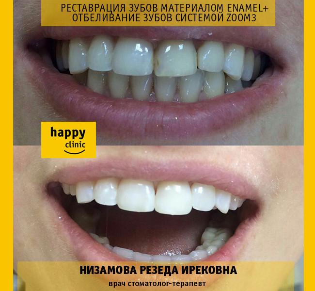 Отбеливание зубов при реставрации