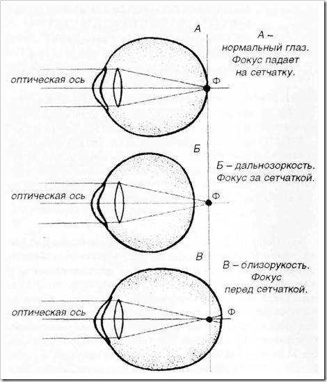 Близорукость лечебная физкультура