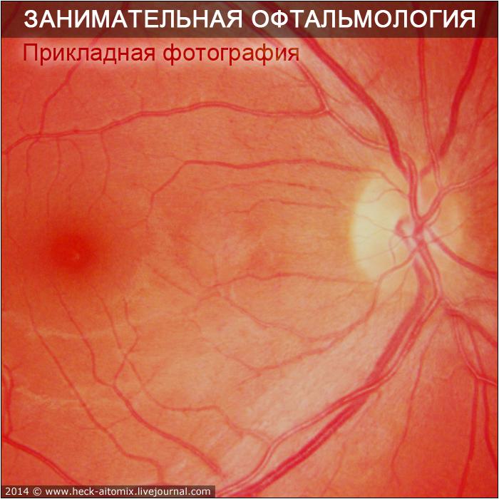 Как фотографируют глазное дно