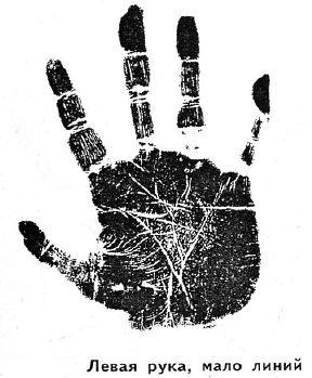 Большинство линий на руке образуется из-за тревог и беспокойства
