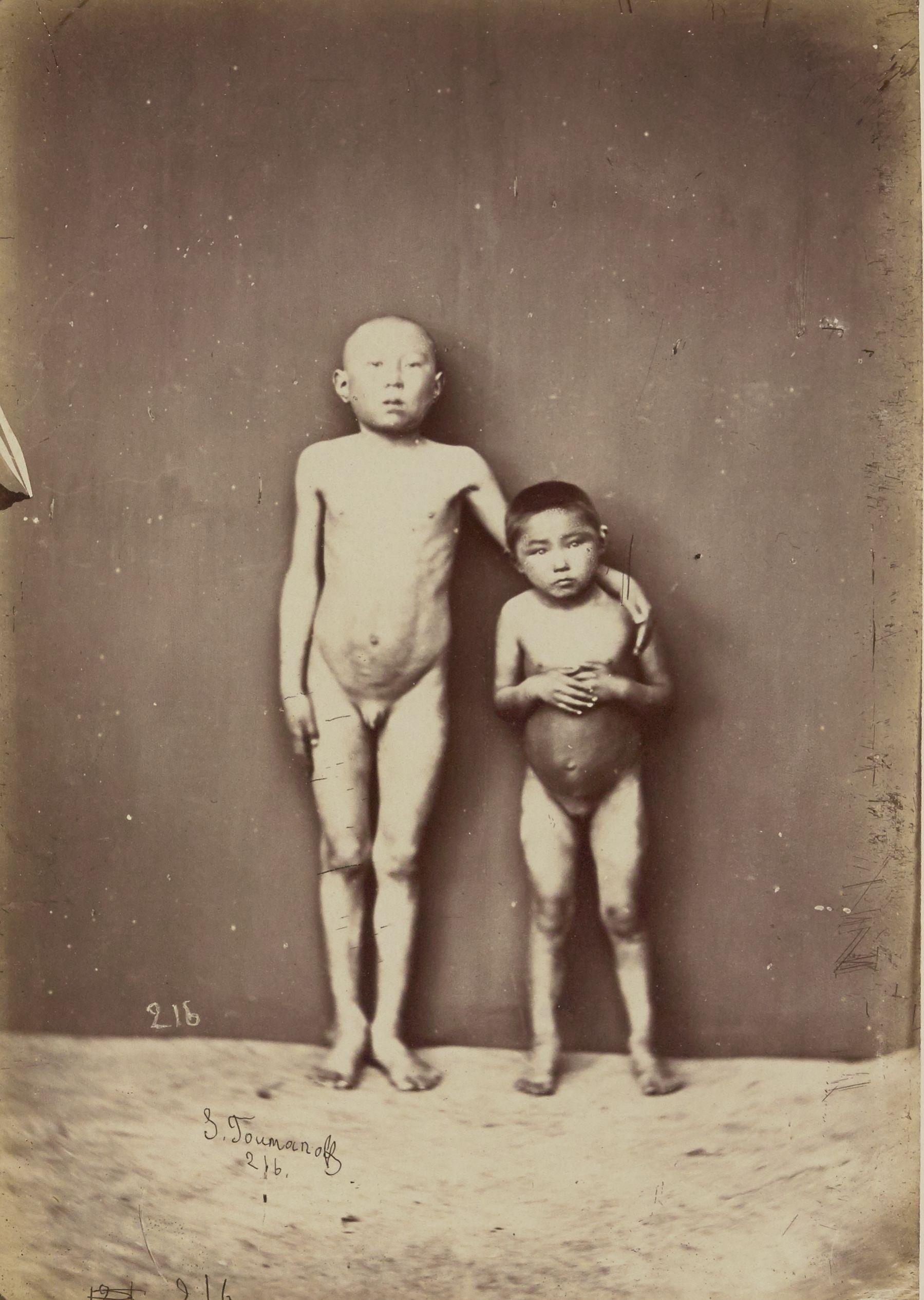 Бурятские дети, 6-летняя девочка, 10-летний мальчик