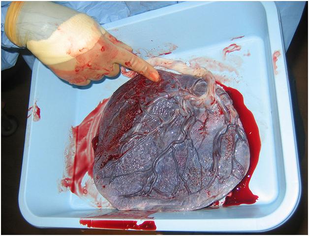 Плацента человека сразу после рождение с пуповиной на месте