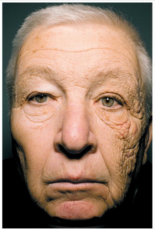 Sun-Aging