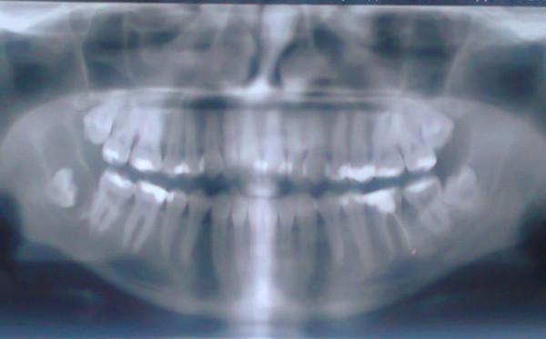 zubi-mudrosti-pit-analgetiki