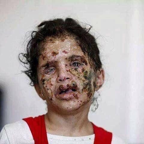 девочка из Йемена