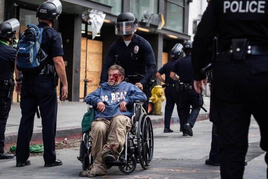 инвалид из LA после выстрела копа