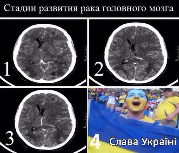 с опухоль чем мозга путают
