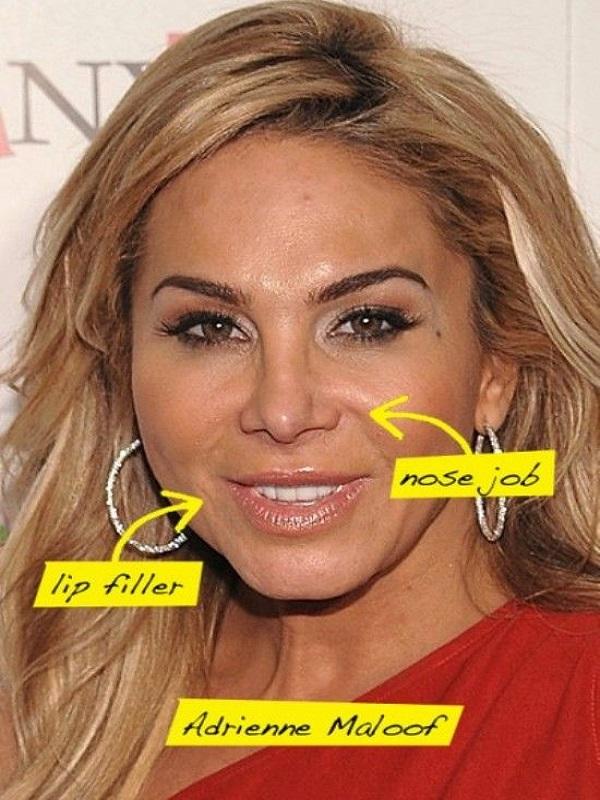 Adrienne-Maloof-Plastic-Surgery-2013