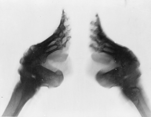 Bound_feet_X-ray.jpg