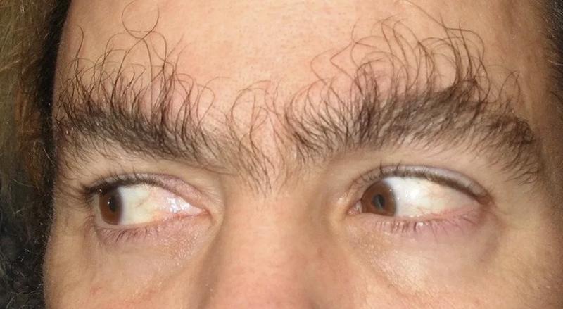 Коллега стал йети: восстановление волос на голове - жуткая побочка