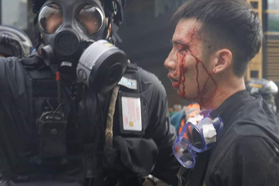 L'altra faccia della medaglia della rivolta pacifica di Hong Kong 19
