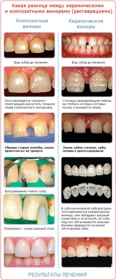 Как сделать керамический зуб