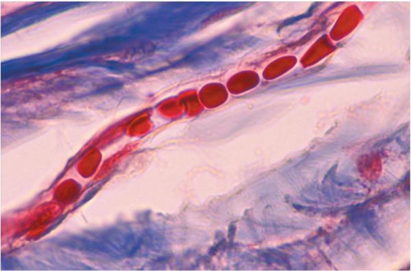 capillar4
