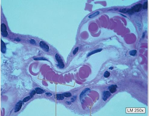 capillar3