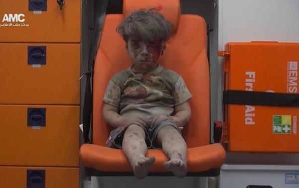 5-летний мальчик из Сирии