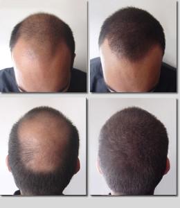 кератиновый загуститель волос_1