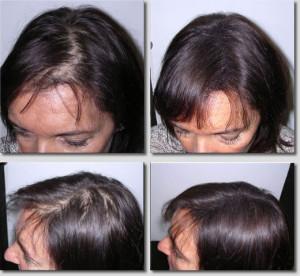 кератиновый загуститель волос_2