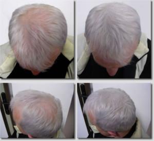 кератиновый загуститель волос_3