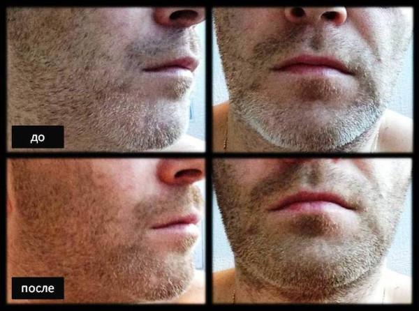 загуститель бороды_щетина 7 дней до и после