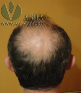 пересадка волос FUE до и после.jpg