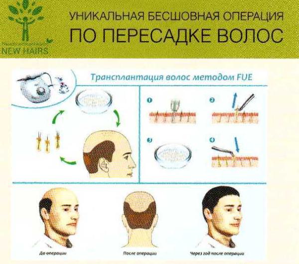 Метод пересадки волос FUE.jpg