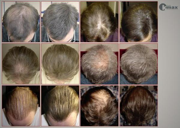загуститель волос kmax