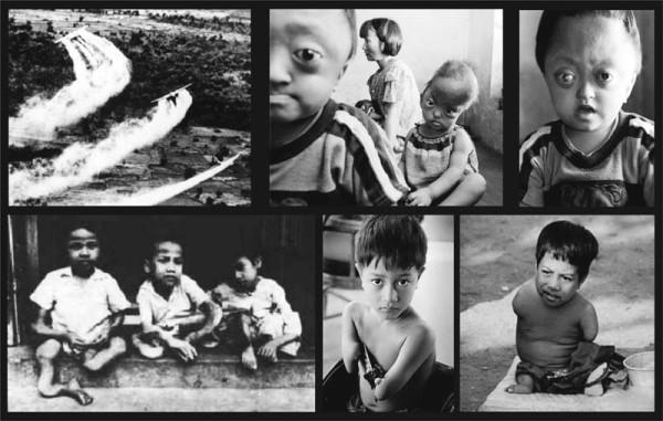 Дети рождённые в чернобыле фото