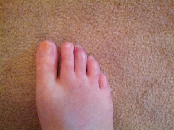 this_foot_mess