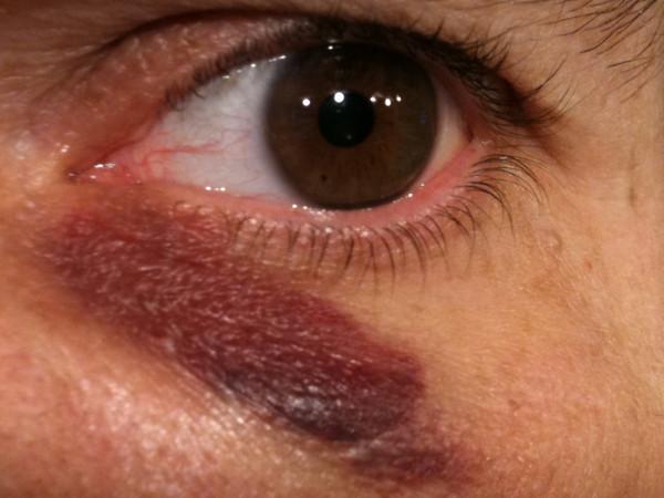 black_eye_day_2_close
