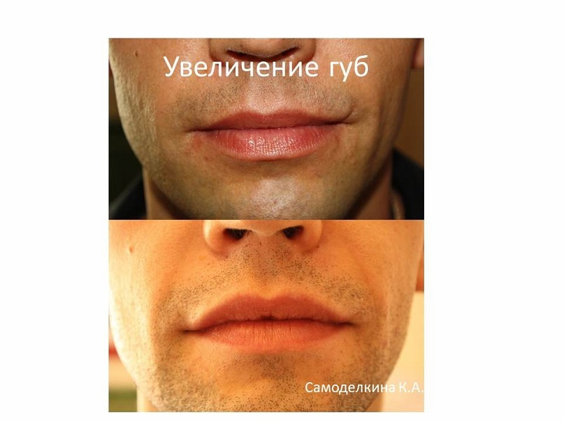 y_dbf44055
