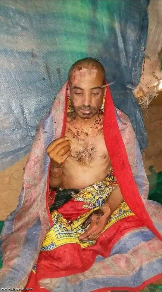 Хусииты практикуют самые варварские виды пыток в отношении граждан Йемена
