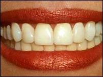 Людям с травмами позвоночника вернут подвижность зубы