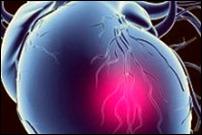 От инфарктов умирают чаще здоровые люди