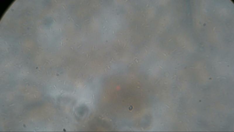 кефир под микроскопом