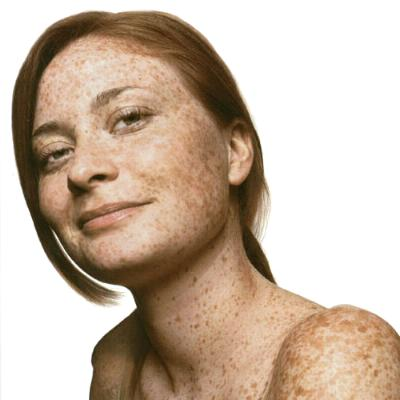 Какие гормоны влияют на пигментацию кожи