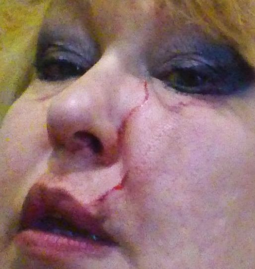 ОЛьга раны на лице 5.jpg