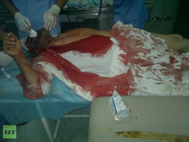 injured-man-bani-walid