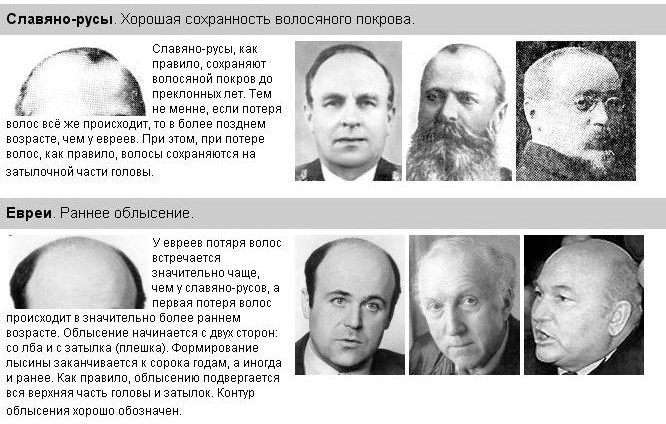 точно отличительные черты внешности евреев фото прошлой