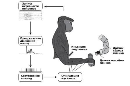 мозговой интерфейс