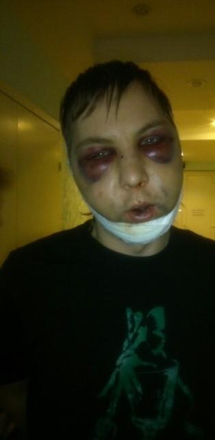001_Богаткин через день после избиения