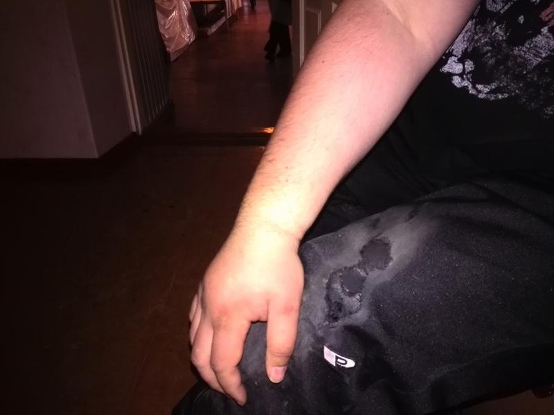 перелом руки, повреждение экипировки