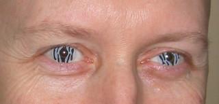 Closeup of the Zebra lenses