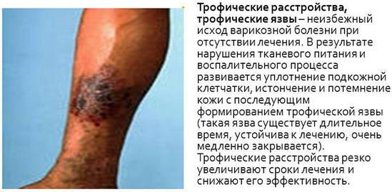 Как лечить диабетическую трофическую язву на ноге