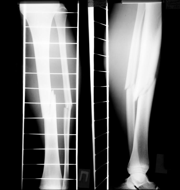 репозиция при переломе берцовой кости ноги