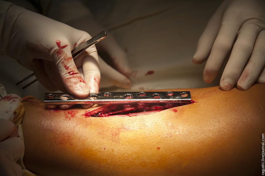 Перелом голени. Операция по репозиции и наложению пластины. - Еле ...