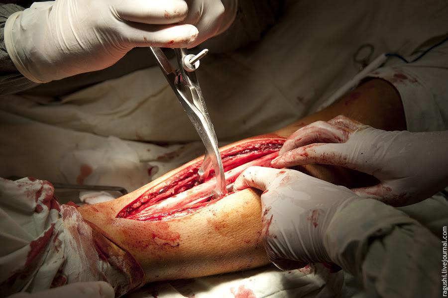 как снимают спицы после перелома с руки